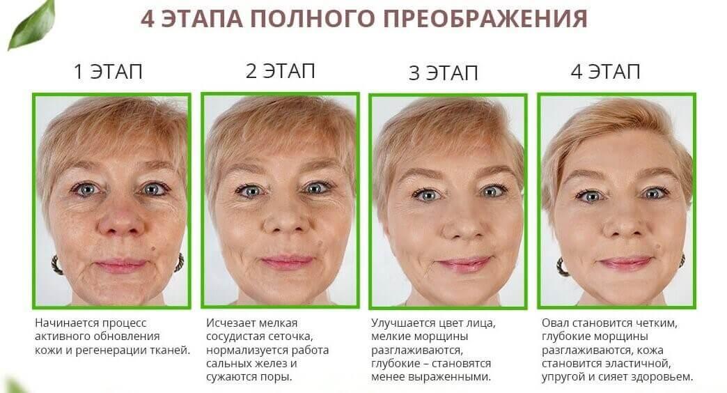 Лифтенсин Омоложение