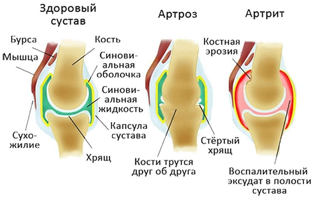 Сустафаст Суставы