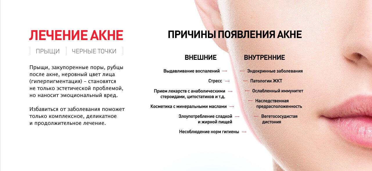 Лечение акне