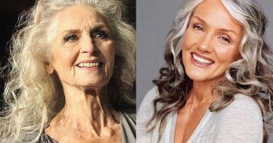 омоложение лица после 50 лет