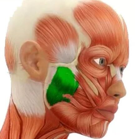 гипертонус жевательных мышц