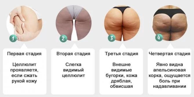 4 стадии целлюлита фото