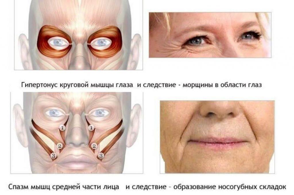 гипертонус мышц лица